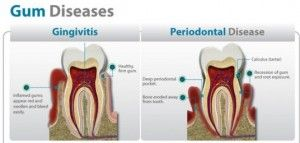 treat gum disease with home made remedies