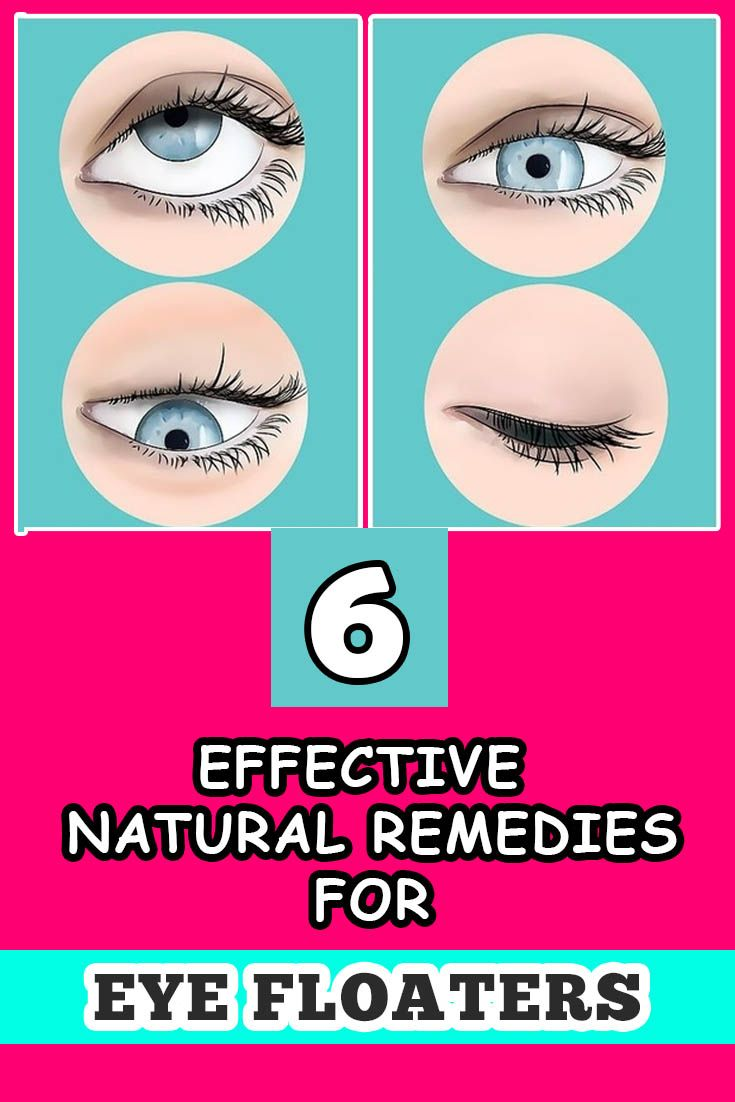 6 Natural Remedies To Get Rid Of Eye Floaters Howtocure Natural Remedies Remedies Home Remedies