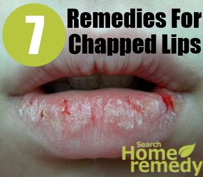 7 Home Remedies For Chapped Lips
