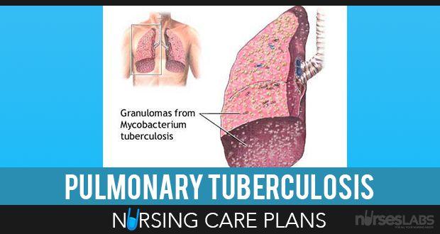 5 Pulmonary Tuberculosis Nursing Care Plans Nursing care plan - care plan