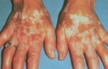Vitiligo_symptoms_hands.jpg (369×235)