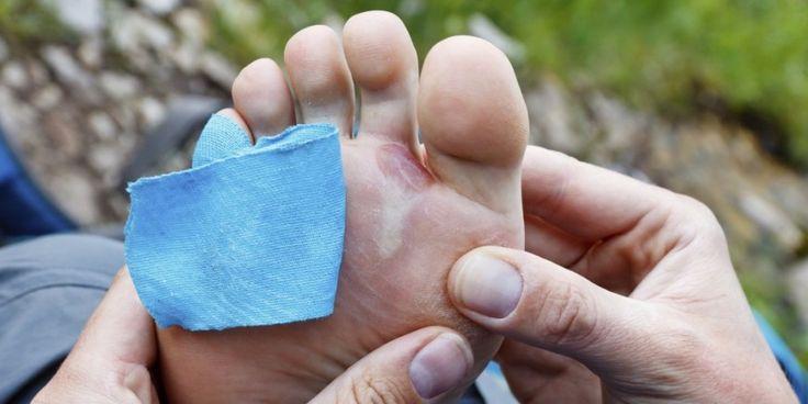 Fußschmerzen: Wenn jeder Schritt schmerzt - Onmeda.de