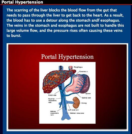 Portal Hypertension Natural Remedies