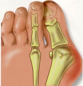 bunions part of a magnesium deficiency? (very interesting! I've had virtually no bunion pain since taking higher doses of magnesium this pregnancy...)