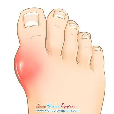 how to get rid of gout in big toe