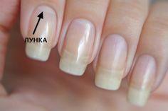 Взгляните на свои ногти: видите светлые полумесяцы у их основания? Это и естьлунки, или лунулы.  Как правило, у большинства людей они имеются от рождения, а вот с возрастом могут исчезнуть на некото…