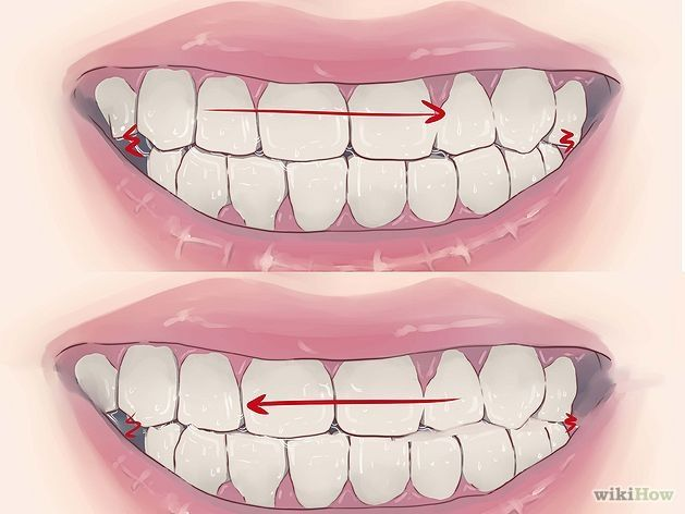 How to Stop Grinding Teeth at Night #teeth #tipsandtricks #health