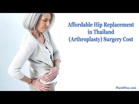 #HipReplacement (Arthroplasty) Surgery Cost in #Thailand | Placid Answer - YouTube