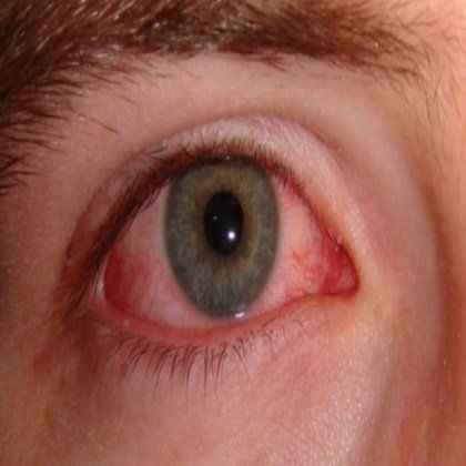 12 Home Remedies For Conjunctivitis In Adults - Natural Treatment And Cure For Conjunctivitis | Search Home Remedy