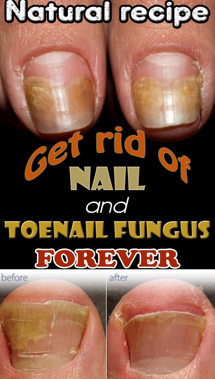Natural Cure For Fungal Infection Of Nails