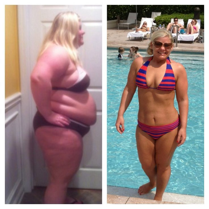 60 Weight Loss Transformations That Will Make Your Jaw ...