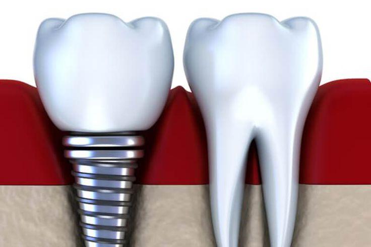 Impalntation in Mosonmagyaróvár, Ungarn unter Lokalanästhesie, intravenöser Sedierung oder Vollnarkose. Zahnimplantate günstig in Ungarn einsetzen lassen.