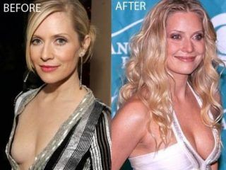 Emily Procter Plastic Surgery Speculation | Top Celebrity Surgery