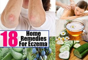 Remedies For Eczema