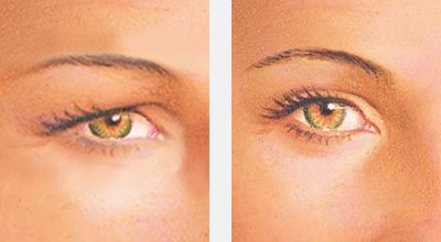 Before & after upper eyelid lift surgery (blepharoplasty) - eyelid surgery albany ny
