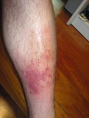 Cellulitis-- is a bacterial infection involving the inner layers of the skin. It specifically affects the dermis and subcutaneous fat. Signs and symptoms include an area of redness which increases in size over a couple of days. The borders of the area of redness are generally not sharp and the skin may be swollen. While the redness often turns white when pressure is applied this is not always the case. The area of infection is usually painful.
