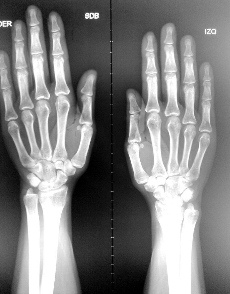 Radiografía de la mano: -Términos de situación y posición.  -Accidentes óseos. -Clasificación morfológica de los huesos. -Clasificación de articulaciones.