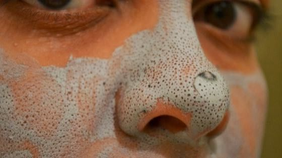 Top 5 Home Remedies For Blackheads That Might Really Work For The Teenagers :http://www.beautyvigour.com/home-remedies-for-blackheads/
