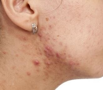 Why am I getting pimples on my neck or what causes neck