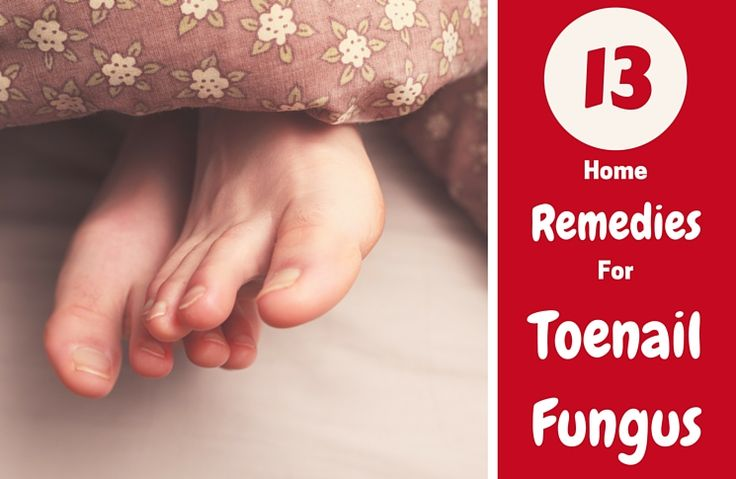 can i use bleach to get rid of toenail fungus