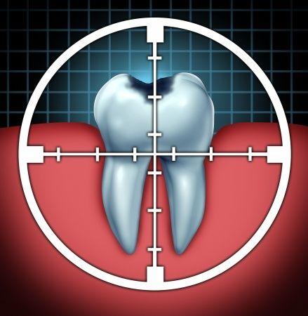 Tratamiento del Conducto o endodoncia : existen métodos alternativos?