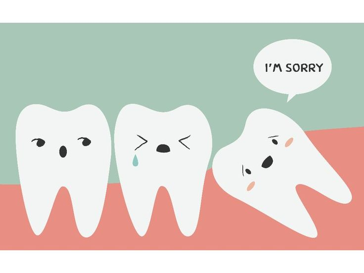 Wisdom tooth extraction infection