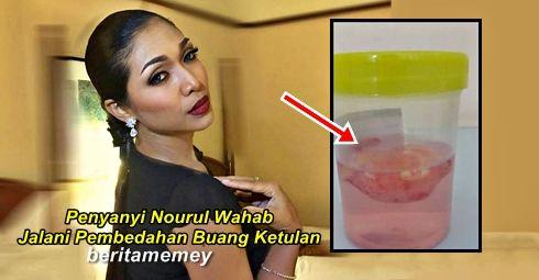 Nourul Wahab Jalani Pembedahan Buang Ketulan   Nourul Wahab Jalani Pembedahan Buang Ketulan  Penyanyi Nourul Wahab telah selamat menjalani pembedahan baru-baru ini. Pembedahan tersebut adalah untuk membuang ketulan di peha kanannya di sebuah pusat perubatan. Nourul mengatakan kehadiran ketulan itu disedarinya sejak 18 tahun lalu namun dibiarkan saja. Ketulan itu tidak memberiimpak terhadap tubuhnya namun Nourul mengambil langkah berjaga-jaga supaya kesihatannya pada masa akan datang tidak…