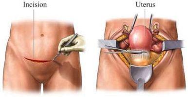 Uterus Removal Surgery in India - Consult Indianmedguru