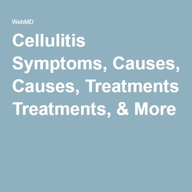 the causes symptoms and treatment of cellulitis