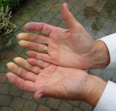 """What Dysautonomia Patients Should Know About Antiphospholipid Syndrome."" Pic: Raynaud-hand"