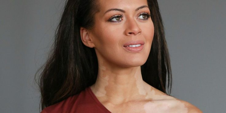 Model With Vitiligo Overcomes Bullying to Become Pageant Queen - Laura Gregory Photos