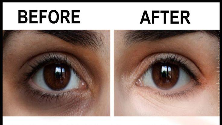 Pin de Desi Tips For You en Remove Under Eye Dark Circles ...