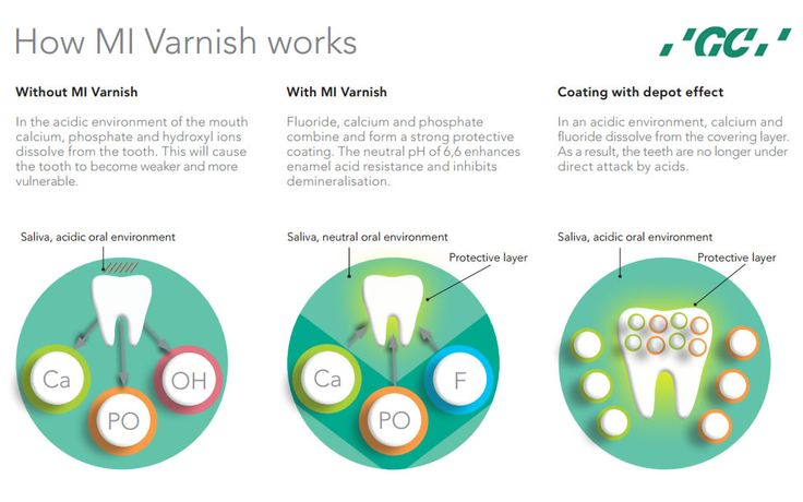 How #MIVarnish works?