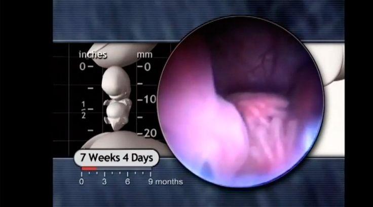 Esta semana un video ha remecido las redes sociales al mostrar un embrión humano de siete semanas que se mueve, con varias partes del cuerpo ya formadas y contradice los argumentos abortistas que aseguran que en esta primera fase del embarazo solo hay un cúmulo células.