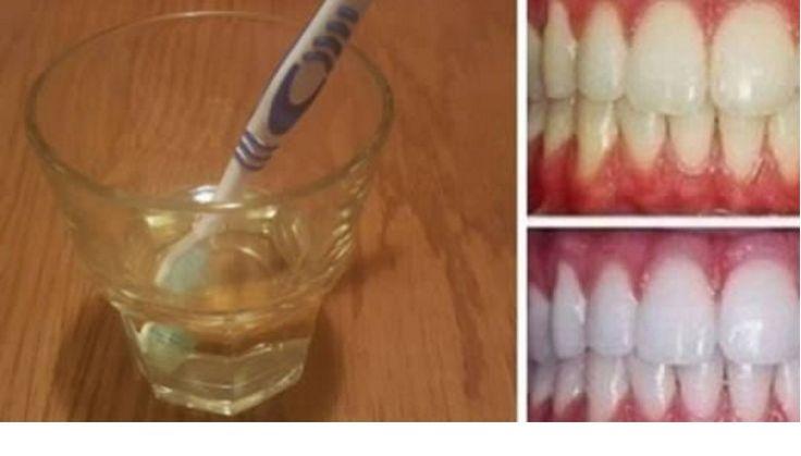 L' aceto di mele è l' ingrediente base per ottenere un' efficace dentifricio sbiancante naturale per la salute della bocca preservando lo smalto dei denti.