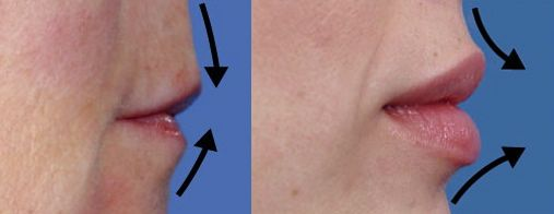 Lip Lift Surgery, Lip reduction Perth-Dr Ehsan Jadoon                                                                                                                                                     More