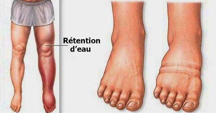 Vous souffrez de jambes lourdes et gonflées ? Voici les causes de la rétention d'eau et comment l'éviter simplement...