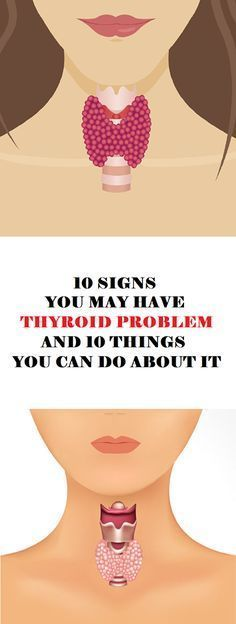 Here you have the ten most important symptoms of hypothyroidism and 10 ways how you can improve the thyroid function