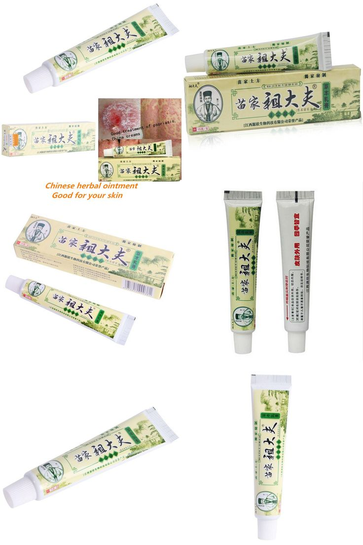 [Visit to Buy] Chinese Miao Herbal ointment psoriasis eczema ointment Anti Bacterial cream vitiligo skin disease #Advertisement