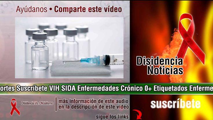 Vacuna experimental contra el VIH