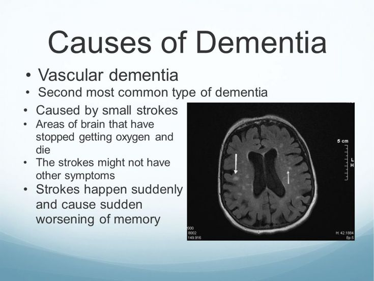 Vascular Dementia Is Caused By