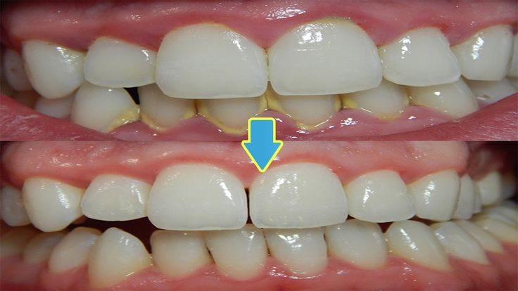 How to Remove Teeth Plaque Naturally at Home - Best Remedies for Teeth P...