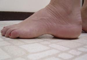 Qué es el pie cavo