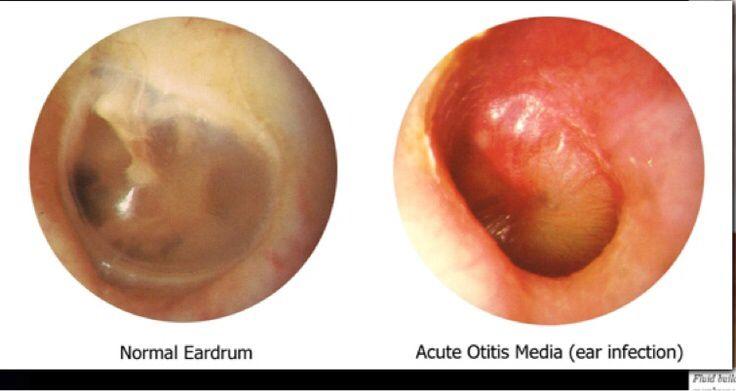 Normal eardrum vs. acute otitis media infected eardrum