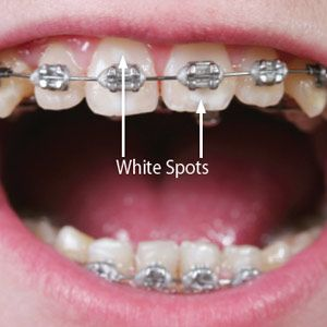 After months of treatment we've removed your braces and your new smile emerges. Upon closer view, however, you notice a number of chalky white spots on your teeth. These pale areas are white spot lesions (WSLs), the result of mineral breakdown from the long-term contact of acid with the ename