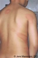 In about half of patients with chronic idiopathic hives, the explanation is that bodys immune system is, in a sense, overactive. The urticaria is autoimmune. The immune system is attacking the normal tissues of the body and causing hives as a result. We know certain urticaria sufferers have other signs of autoimmune problems. Some have autoimmune thyroid disease, vitiligo, swollen joints, or certain abnormalities in the blood (especially the ANA test). A new treatment has recently emerged…