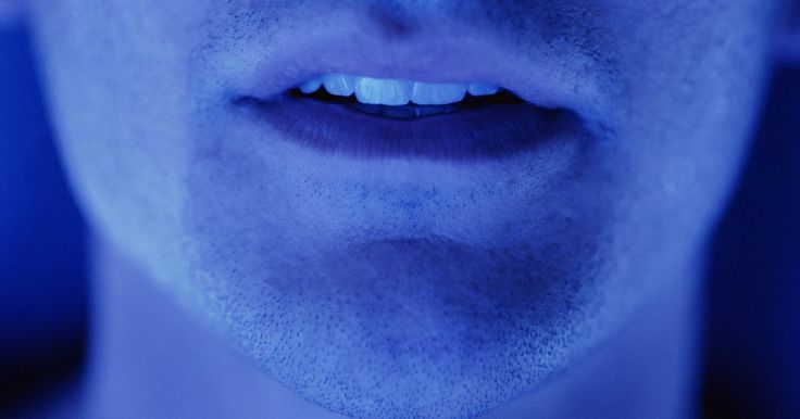 Quais são as causas de aftas bucais?. Aftas são causadas por acúmulos de um fungo conhecido como Cândida albicans. Se você tem aftas bucais, lesões brancas (que se parecem com queijo cottage) aparecerão na sua língua ou na parte de dentro das bochechas. Se o fungo se espalhar, sua gengiva, amígdalas, garganta e céu da boca apresentarão lesões. A severidade da afta pode fazer com que ...
