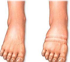 Remedies for Swollen Feet http://footanklealliance.com/blog/los-angeles-california-foot-doctors/
