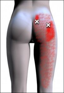 Buttock pain with leg pain is common with Piriformis Syndrome, which sometimes strikes hikers.