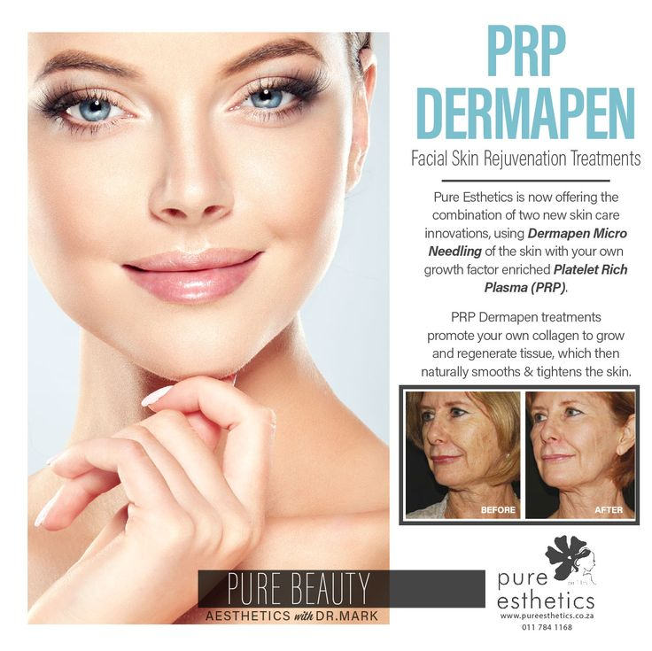 PRP Dermapen *Facial Skin Rejuvenation Treatments Pure Esthetics is now offering the combination of two new skin care innovations, using Dermapen Micro Needling of the skin with your own growth factor enriched Platelet Rich Plasma (PRP). PRP Dermapen treatments promote your own collagen to grow and regenerate tissue, which then naturally smooths and tightens the skin. For more information or a booking please contact us at +2711 784 1168 #beautysecrets #Aesthetics #Beauty #instadaily…